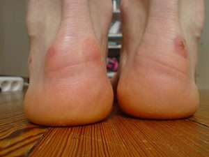 hiking- trail-boots- blisters